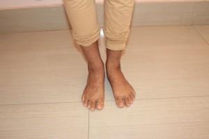 Eczema |Signs n Symptoms | Treatment | Home Remedies