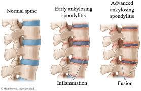 Spndylitis