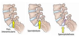 Spondilolisthesis