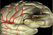CVA- Cerebro vascular Accident