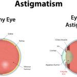 Astigmatism ayurveda eye cure