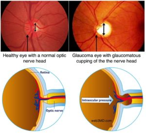 Glaucoma Treatment in Ayurveda